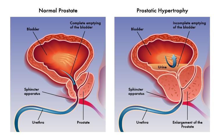 complicaciones uretrales del tratamiento del cáncer de próstata